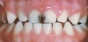 Decaying primary teeth